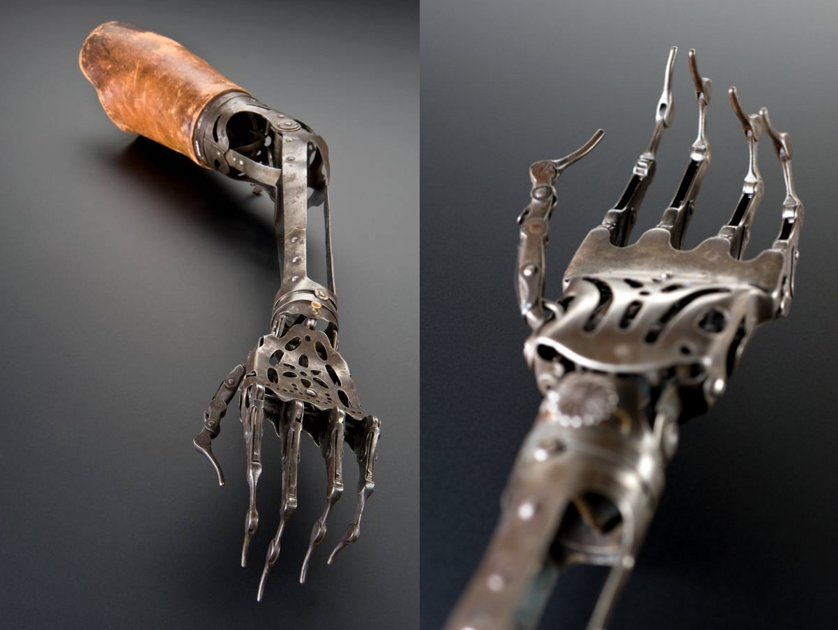 Первый в мире человек с механической рукой: chyyr