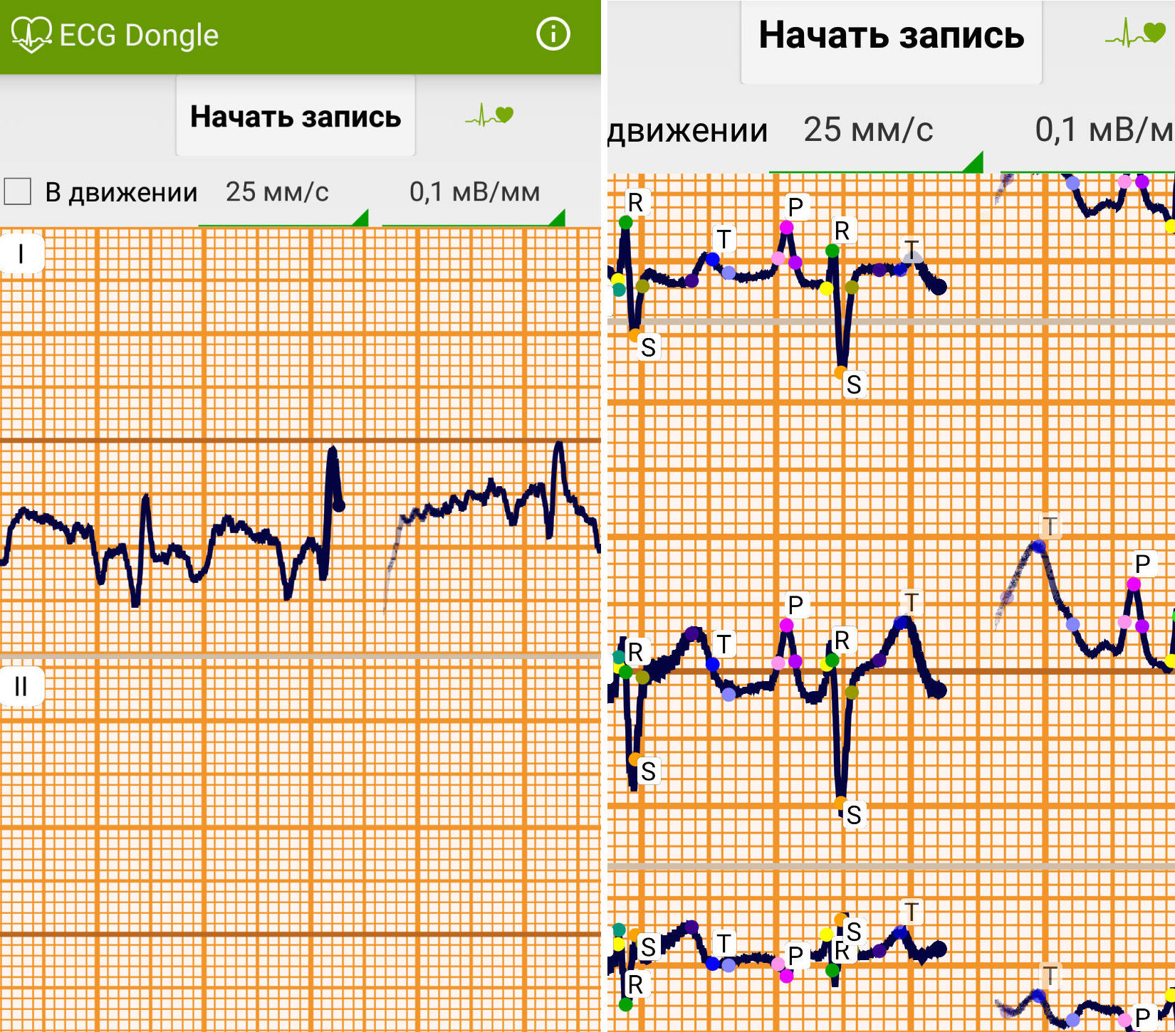 ЭКГ на дому, или сделано в России: отечественные разработчики представили кардиофлешку [8]