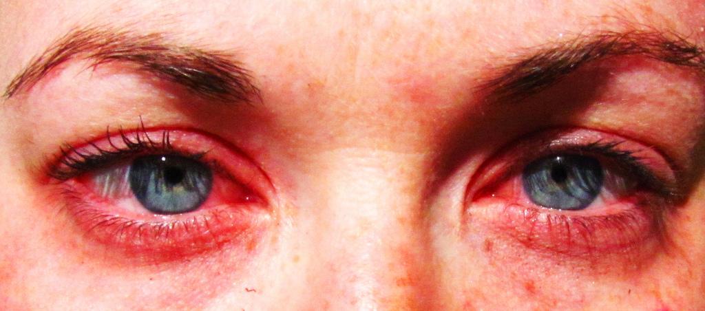 Аллергия на внедрение