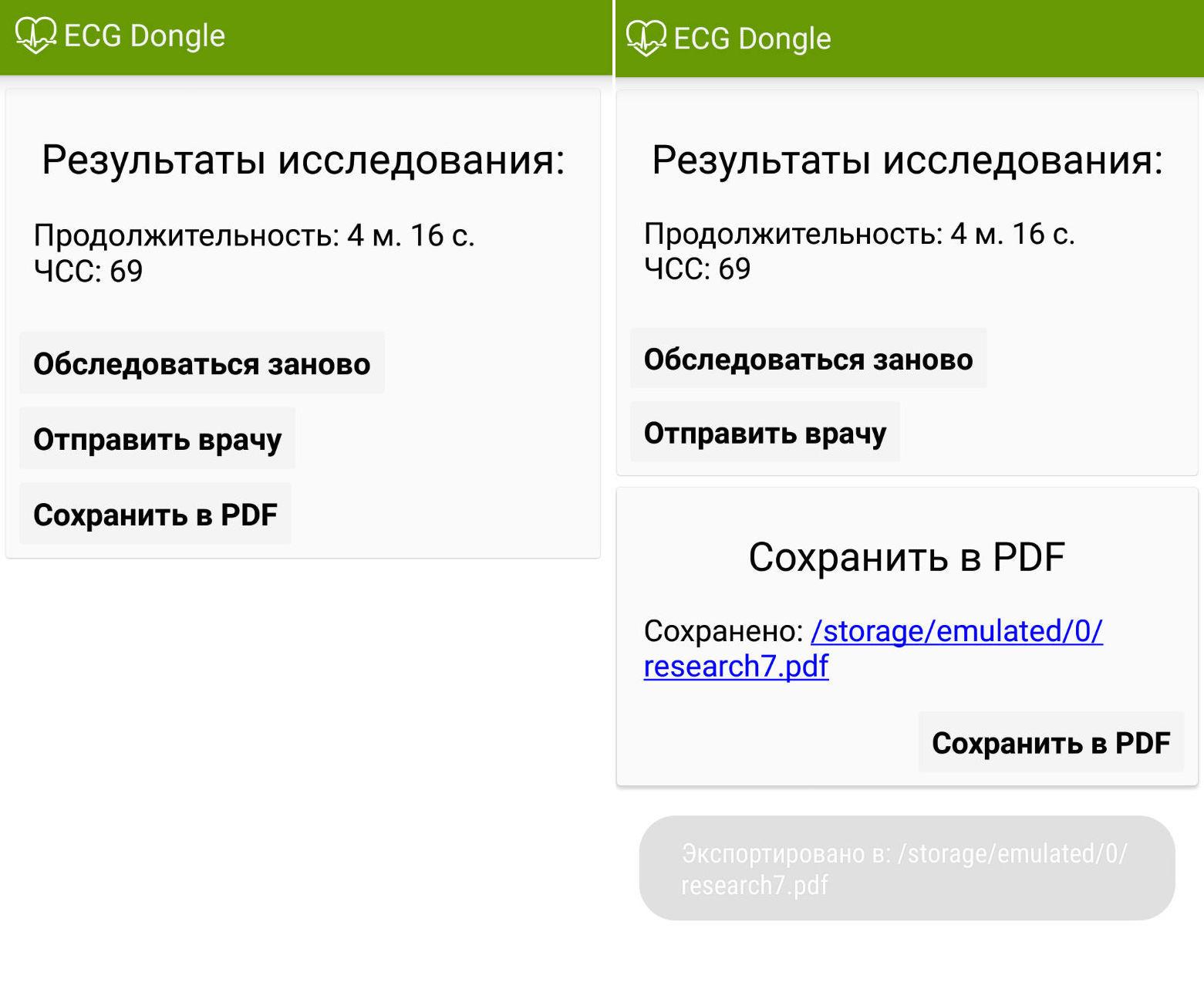 ЭКГ на дому, или сделано в России: отечественные разработчики представили кардиофлешку [7]