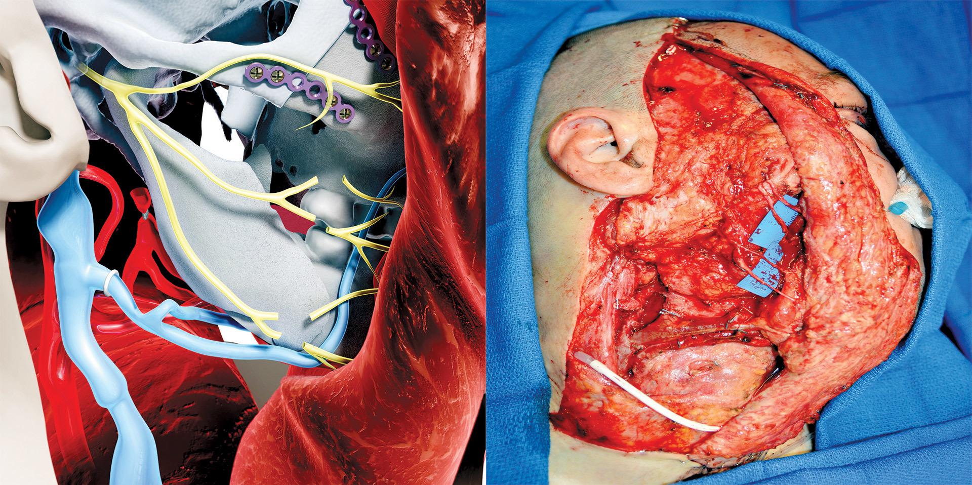 Умерла первая женщина, которой частично пересадили лицо