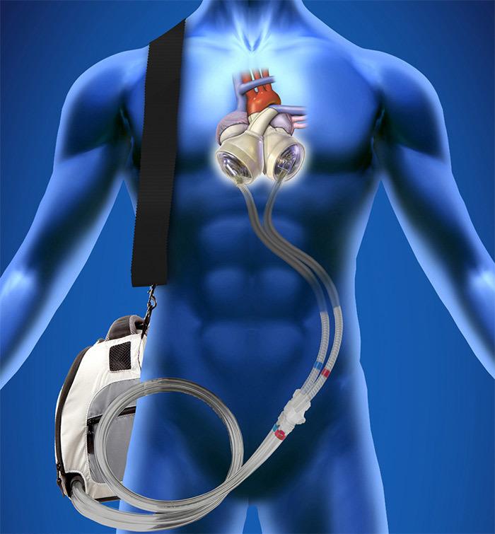 mechanical organs