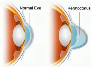 Капли в глаза для улучшения зрения квинакс