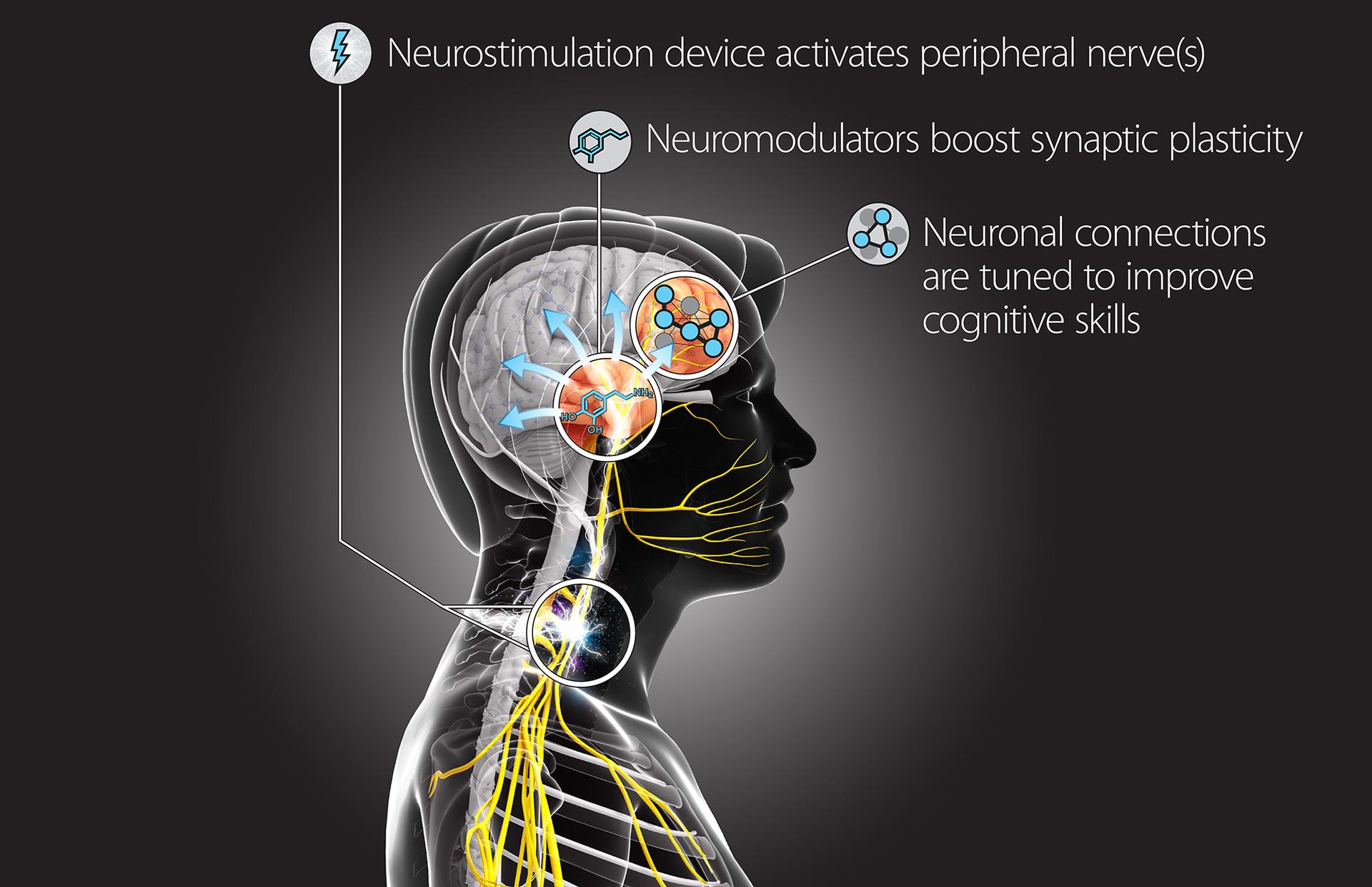 Военные США хотят стимулировать обучаемость мозга электричеством