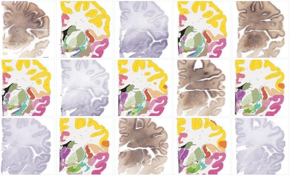 Впервые составлен полный атлас человеческого мозга с клеточным разрешением 1 мкм/пиксель