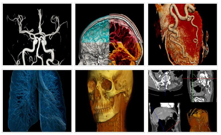 Storage of results of researches by radiodiagnosis method