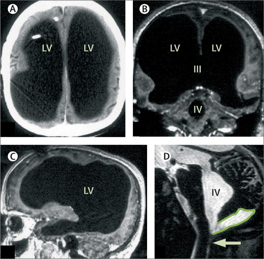 Мужчина, который живёт без 90% мозга, озадачил учёных