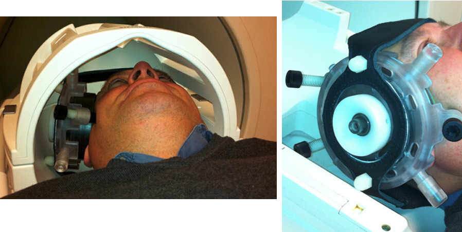 Триггер для сознания? 25-летнего парня вывели из комы, фокусируя ультразвук на небольшом участке в центре мозга
