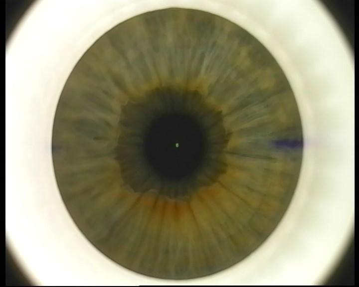 Телеметрия с лазера для коррекции зрения: полная операция с ...