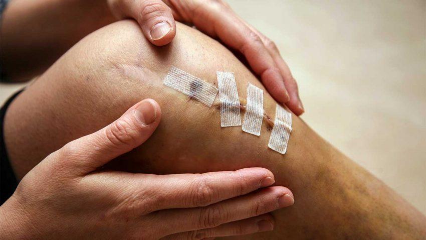 Science: почему травмы колена зачастую не заживают?