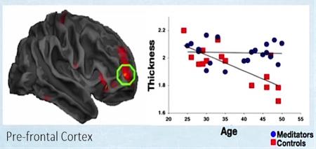 Нейропластичность: перестраиваем мозг