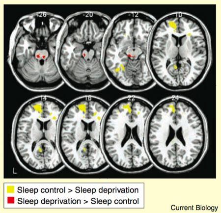 Сон – пустая трата времени или физиологическая необходимость
