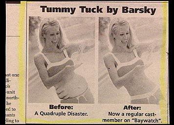 wierd tummy