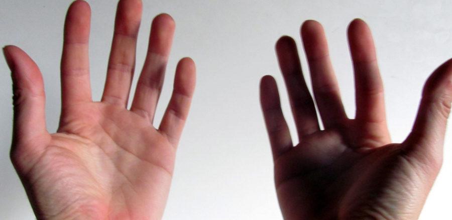 Первый в США пациент, которому трансплантировали обе руки, хочет от них избавиться