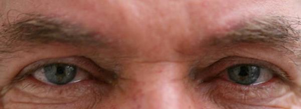kamra eyes No More Reading Glasses: KAMRA Vision Implants Treat Presbyopia