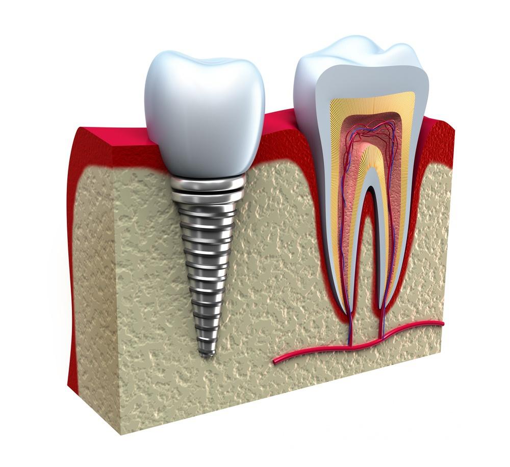 Имплантация зубов на проспекте мира