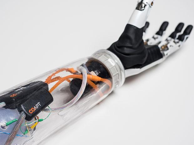 Бионический протез руки теперь способен выполнять мысленные указания владельца