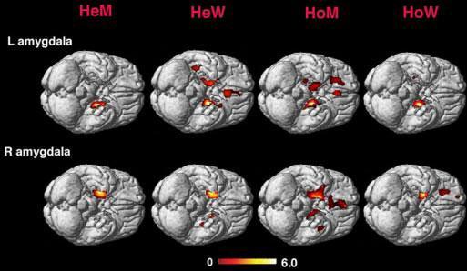 Нарушения мозга и гомосексуализм