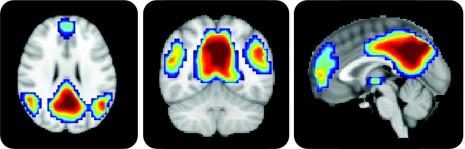 «Мы используем лишь 10% от всего мозга» и другие мифы