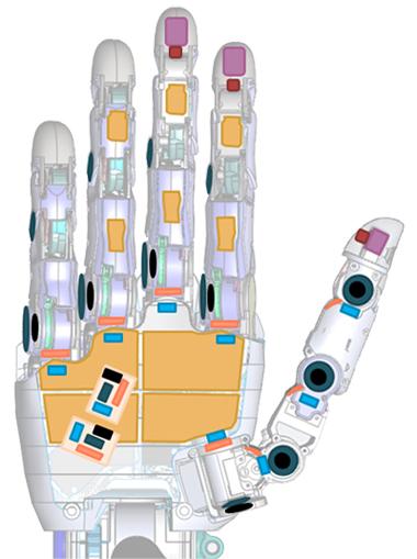 Потерявшая руку женщина получила один из самых совершенных бионических протезов в мире
