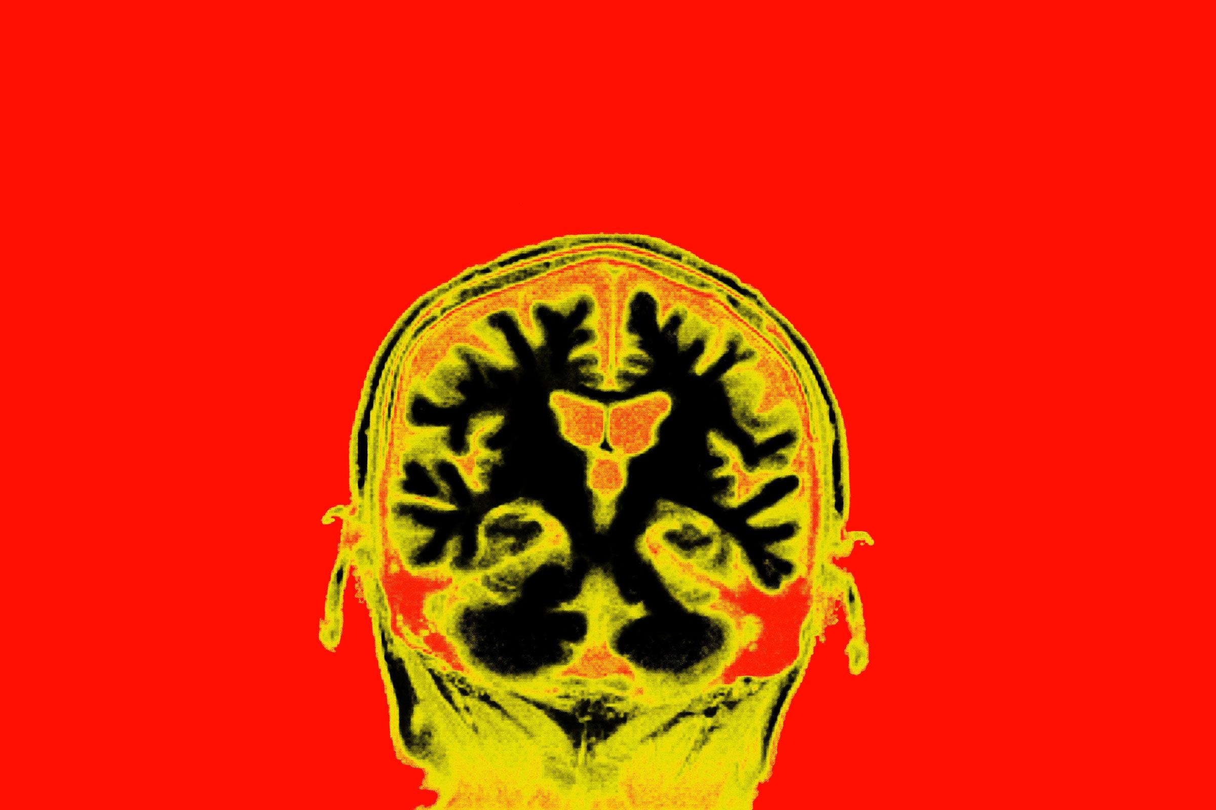 [Перевод] Это ваш мозг под наркозом