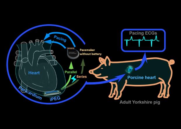 Китайские ученые разработали пьезоэлектрический генератор для электрокардиостимулятора