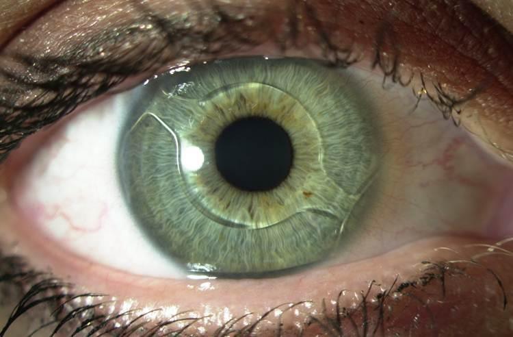 Глаза зрение мушки