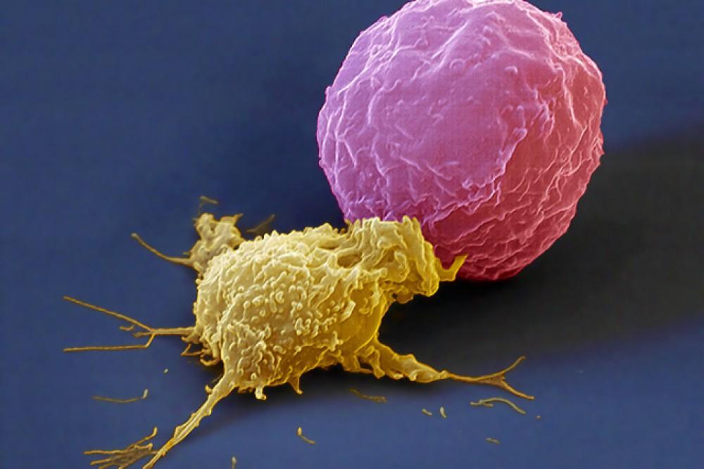 Т-киллер, атакующий раковую клетку