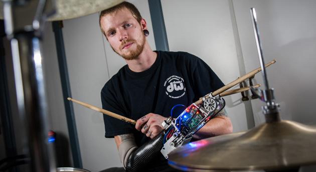 Необычный протез для барабанщика