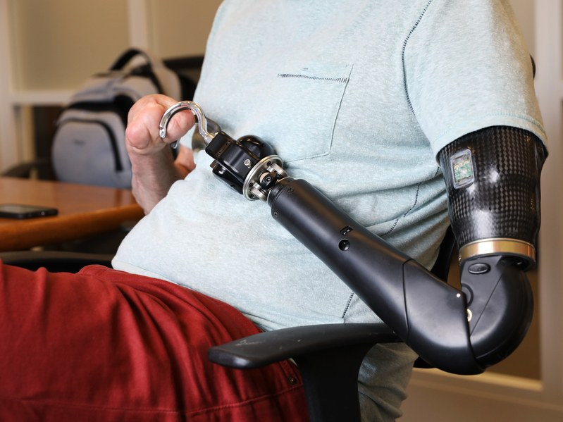 Bionic limbs learn to open beer