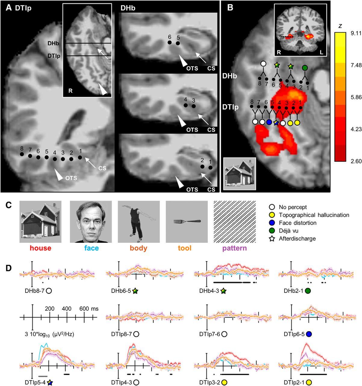 Нервные цепи в мозгу отвечающие за зрительные галлюцинации. Были найдены в 2014 году : https://www.jneurosci.org/content/34/16/5399.short?rss=1