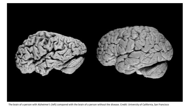 """Картинки по запросу """"синдром альцгеймера"""""""