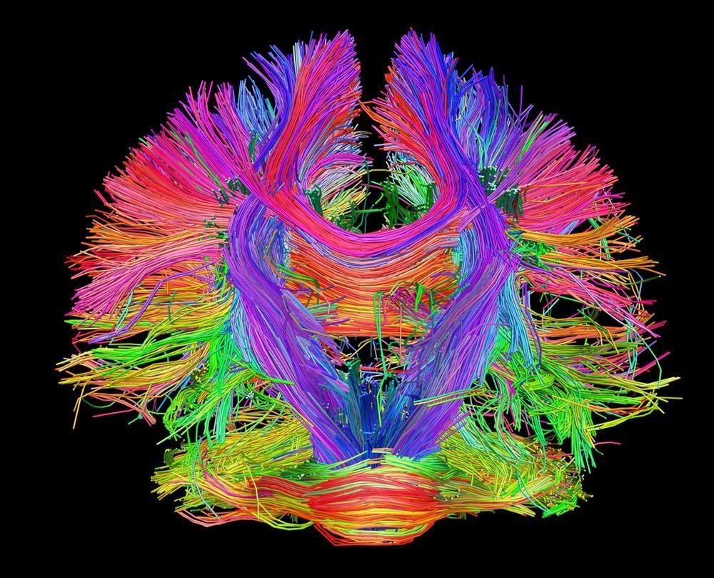 Представление коннектома головного мозга