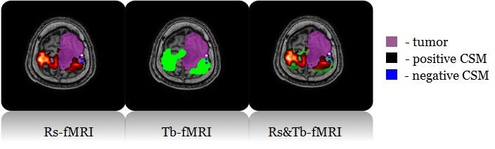 Подготовка к удалению опухоли мозга — локализация речевого и зрительного центров — помогает улучшить планирование операции и сократить время на локализацию этих центров во время процедуры