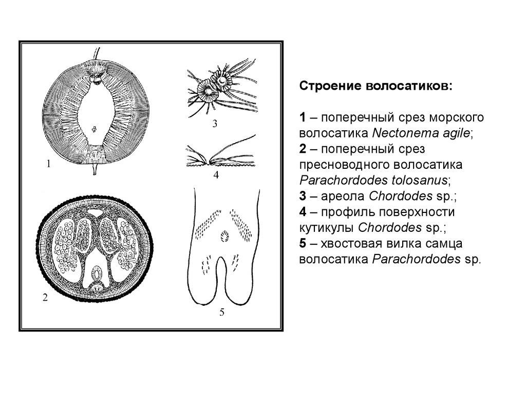 Внутреннее строение тела  разных видов червей-волосатиков: Морской и пресноводный.