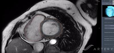 Пример расчета объема сердца по снимку при помощи нейросети