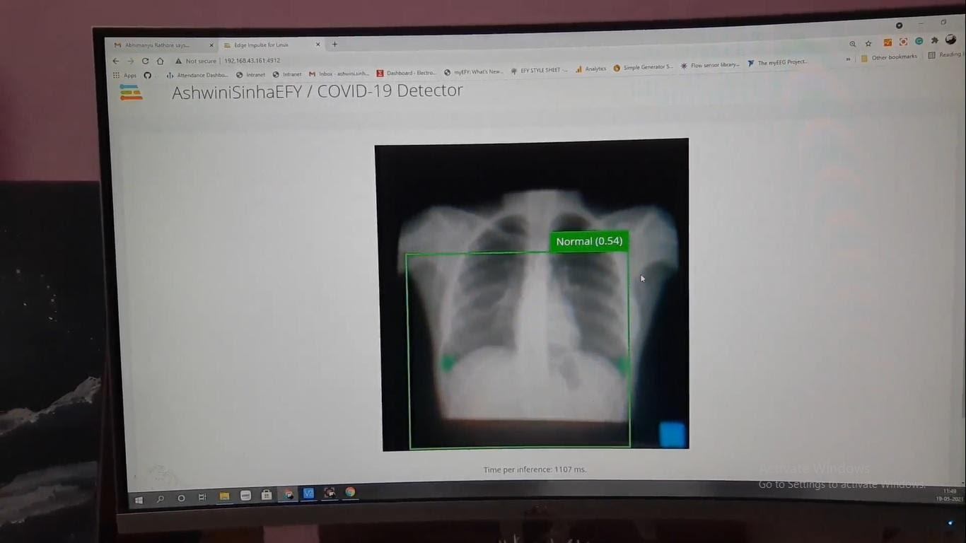 24. Здоровые лёгкие идентифицируются как здоровые