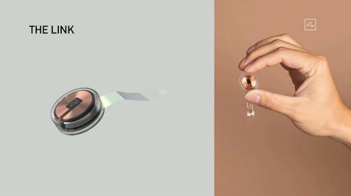 Компактный чип компании Neuralink (диаметр — 23 мм, толщина — 8 мм) после имплантации не торчит из головы.