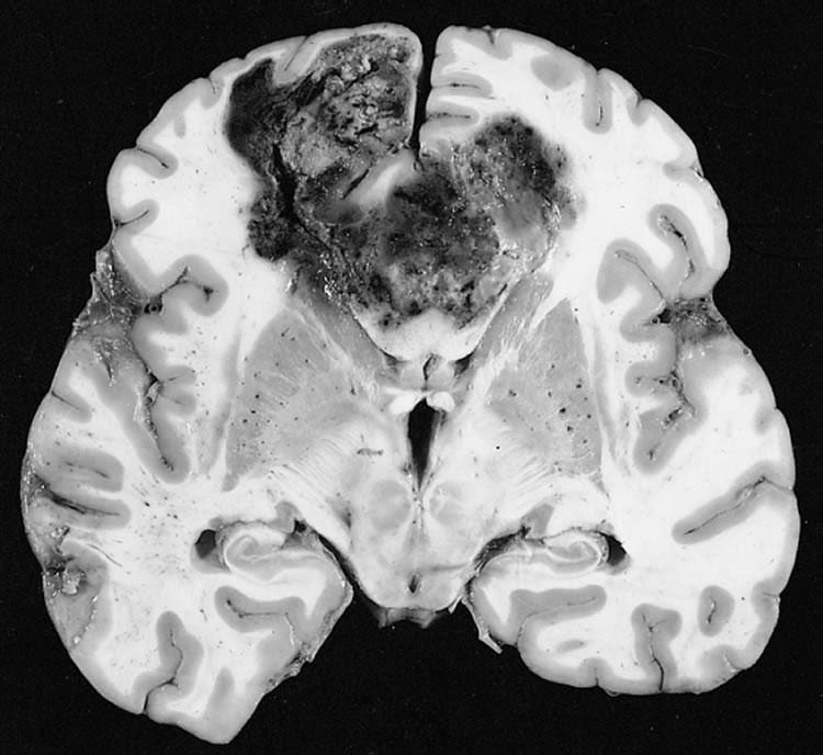 Глиобластома — не только одна из самых распространённых, но и самых смертоносных опухолей головного мозга