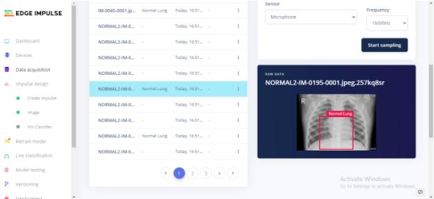 9. Установка уровня для рентгеновского снимка наборов данных для тренировки модели