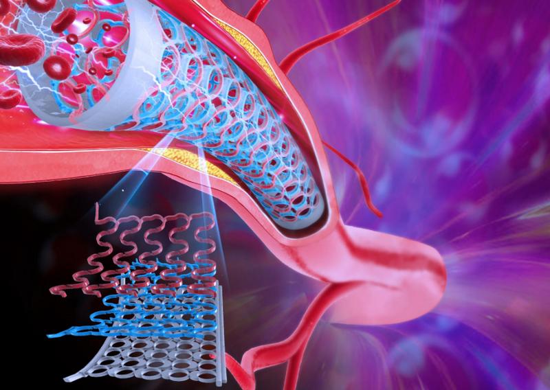 Система метаматериалов в стенте коронарной артерии / iSMaRT Lab