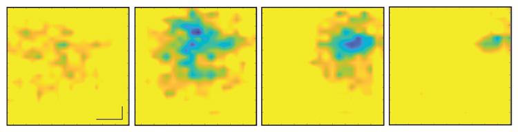 Последовательность изображений бьющегося сердца с интервалом в 5 миллисекунд