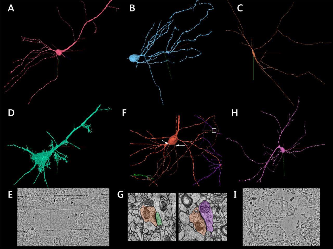 (A) Нейрон пирамидальной формы, почти лишённый шипов. (B) Нейрон с морфологией интернейронов, но с множеством шиповидных выступов на дендритах. (C) Редкий интернейрон, проходящий горизонтально (по касательной) через набор данных. (D) и (E) Пример «тёмной» клетки в ткани, имеющей морфологию пирамидных клеток. (F) Нейрон с двумя отдельными аксонами, выходящих из сомы (белые стрелки). Оба образуют исходящие синапсы (в прямоугольниках), показанных в (G). (H) Нейрон с необычным дендритным деревом (тело клетки смещено в сторону). (I) Поперечное сечение тела клетки астроцита с двумя ядрами.