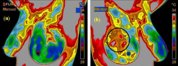 Изображения с тепловизора левой и правой молочных желез пациентки с раком груди. Опухоль может быть обнаружена благодаря локально повышенной температуре кожи в районе новообразования. Стоит, однако, отметить, что такой метод не очень точен, потому не заменяет применяемую сегодня массово процедуру маммографии.