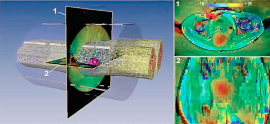 Цифровой двойник тела пациента создаётся в виде тетраэдальной меш-сетки, которая используется для решения уравнений Максвелла и последующего расчета области фокусировки электромагнитной энергии. Примеры термометрии с нагревом опухоли до 30 градусов в двух срезах показаны справа. Обратите внимание что есть участки перегрева и вне опухоли.
