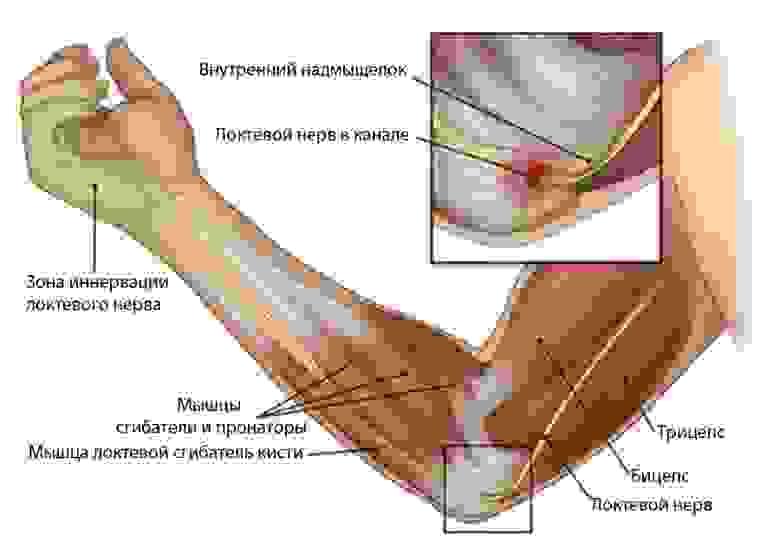 синдром локтевого канала
