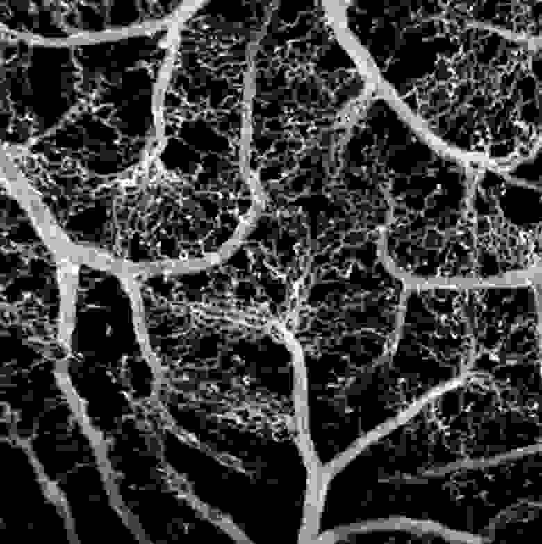 Реконструированная карта кровеносных сетей эмбриона цыпленка / Сколтех
