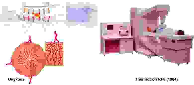 Иллюстрация того, как выглядит сосудистая сетка новообразования в тазовой области и аппарат гипертермии на частоте 8 МГц для выжигания подобных опухолей.