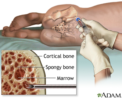 Рисунок 3. Процедура забора костного мозга
