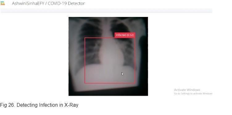 23. Обнаружение инфекции по рентгеновскому снимку